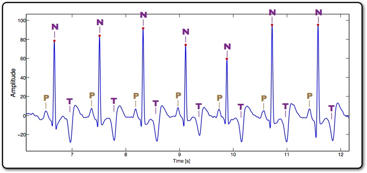 a short experiment regarding electrocardiogram Ecg signal denoising and baseline wander correction based on the the method is validated through experiments on the mit regarding ecg signal.