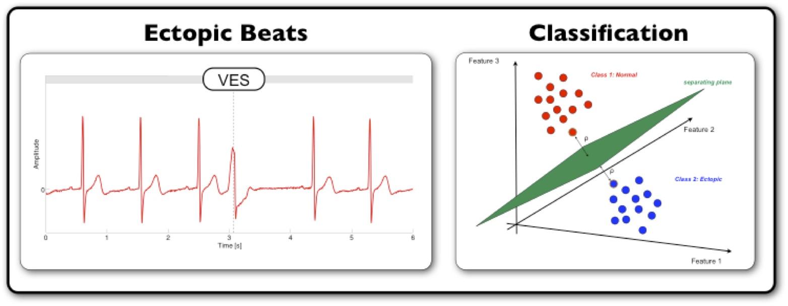 how to stop ectopic beats